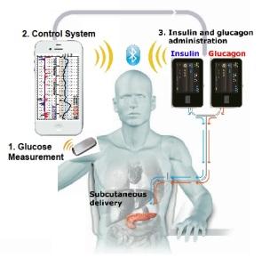 Bionic-Pancreas-System-Graphic